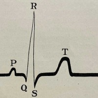 The Electrocardiogram in Clinical Medicine