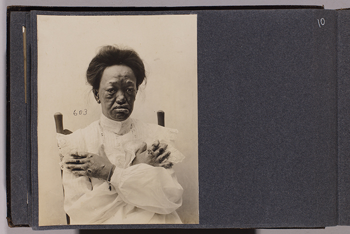 Miss Kanoelani Hart (case 603), age 22, from Waimea, Hawaii, July 3, 1906. Jack London Collection. The Huntington Library, Art Collections, and Botanical Gardens.