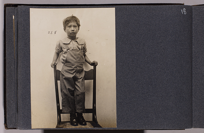 Hiram Pahau (case 558), age 7, from Ala Moana near John Ena Road, admitted Oct. 27, 1905. Jack London Collection. The Huntington Library, Art Collections, and Botanical Gardens.