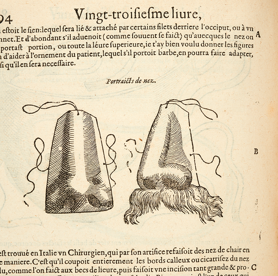 Illustration of prosthetic nose from 1614